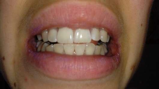 Zähne vor dem Putzen mit dem MARA EXPERT Plaque Checker Zahncreme