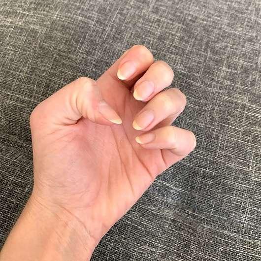 Nägel nach dem Entfernen mit dem ebelin Nagellackentferner acetonfrei (Kokos-Duft)
