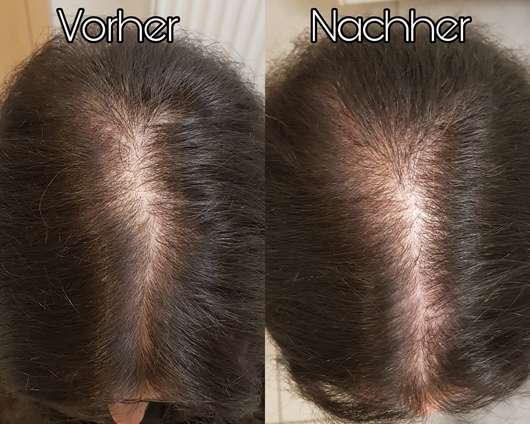 Haare vor/nach dem Test des HAIR DOCTOR Booster für Wachstum