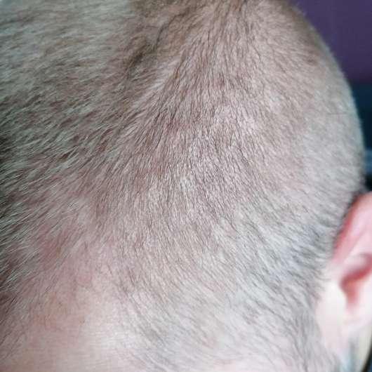 Kopfhaut nach dem Test des La mer MED+ Anti-Dry Shampoos