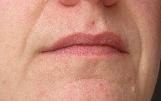 nach der Anwendung des LUSH Bubblegum (Lip Scrub)