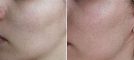 Haut vor/nach der Anwendung der #be routine Bubble Maske