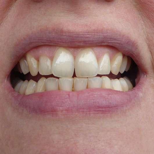Zähne zu Testbeginn - MARA EXPERT Aktivkohle Plus Sensitiv Zahncreme