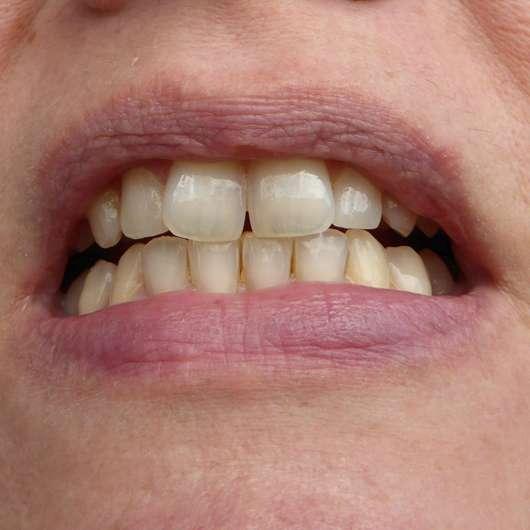 Zähne nach Testende - MARA EXPERT Aktivkohle Plus Sensitiv Zahncreme