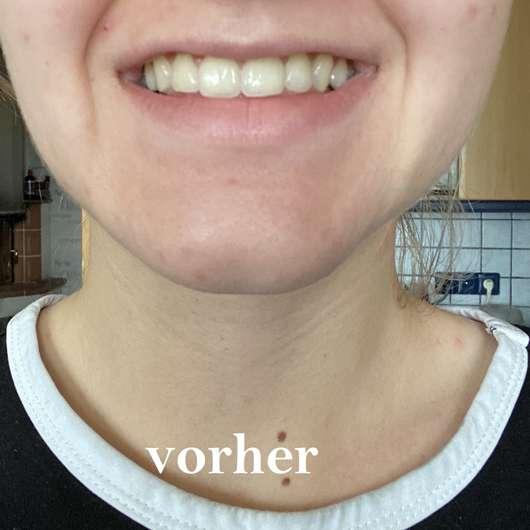 Zähne vor der Anwendnung der Mara Expert Plaque Checker Zahncreme