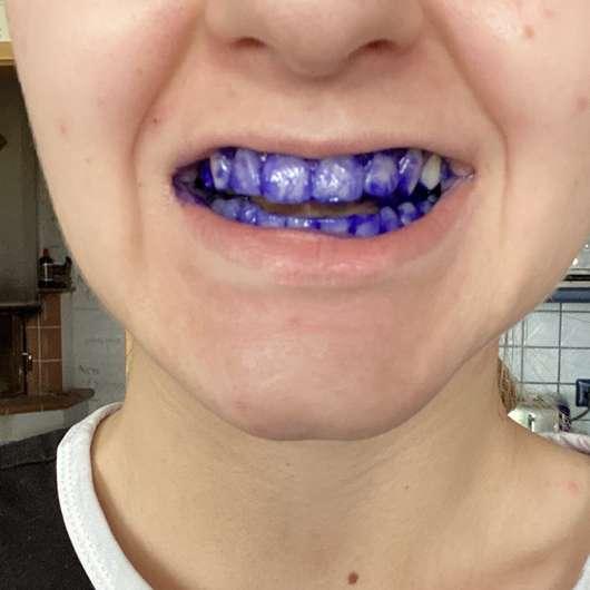 Einfärbung der Zähne durch die Mara Expert Plaque Checker Zahncreme