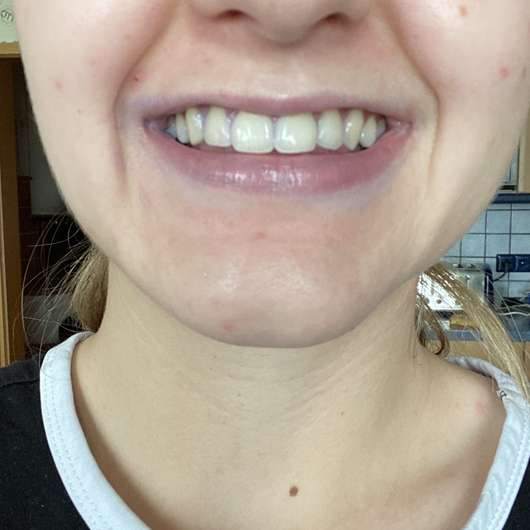 Zähne nach Entfernung der farbigen Beläge durch die Mara Expert Plaque Checker Zahncreme