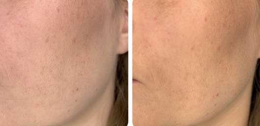 Haut vor/nach dem Auftrag des NYX Multitasking Spray Bare With Me