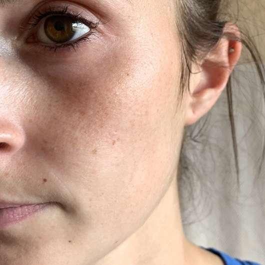 Haut vor der Anwendung der Schaebens Peel-Off Maske