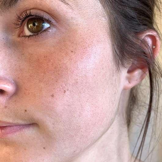 Haut nach der Anwendung der Schaebens Peel-Off Maske