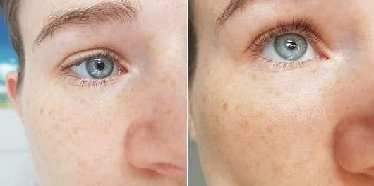 links: Augenpartie zu Testbeginn // rechts: Augenpartie nach 4 Wochen (Schwellungen sind weg, der Blick erfrischt)