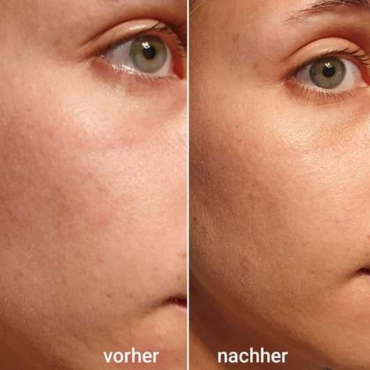links: Haut vor dem Test, rechts: Haut nach vier Wochen