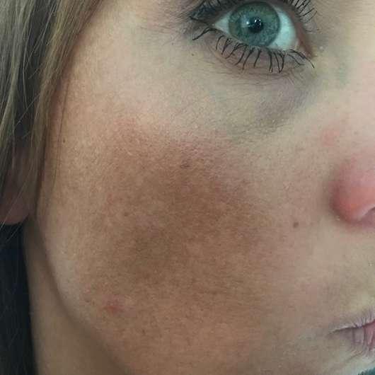 Haut nach Testende - CANDYCUSH Seidige Tuchmasken