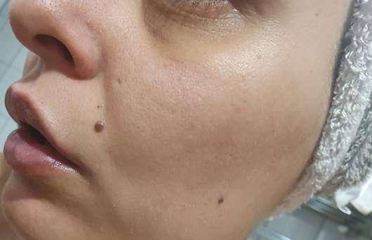 Haut nach 4-wöchigem Test - BIO:VÉGANE Bio Papaya AHA Nacht Serum
