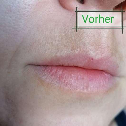 Haut vor dem Test des Eucerin HYALURON-FILLER + ELASTICITY 3D Serums