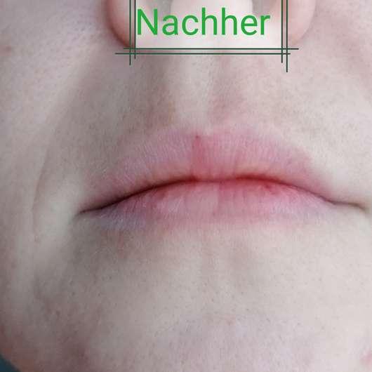 Haut nach 4-wöchigem Test des Eucerin HYALURON-FILLER + ELASTICITY 3D Serums