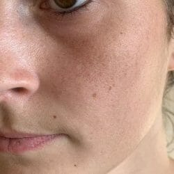 Gesicht nach dem Test der МOY by Stefanie Giesinger Beauty Booster Mask