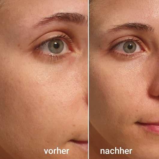 Vergleich der Haut vorher/nachher - The Beauty Mask Company Crazy Cactus Bubble Tuchmaske