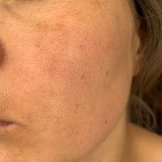 Haut vor der Testphase der Tiroler Kräuterhof Naturkosmetik Bio Gesichtscreme