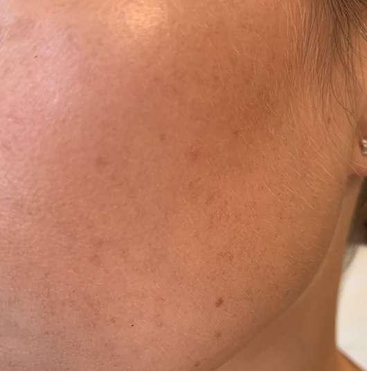 Haut nach der Testphase der Tiroler Kräuterhof Naturkosmetik Bio Gesichtscreme