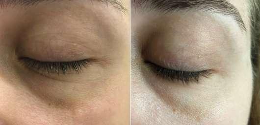 Weleda Feigenkaktus Erfrischendes Feuchtigkeits-Augengel - links: Augenpartie zu Testbeginn // rechts: Augenpartie nach 4-wöchigem Test