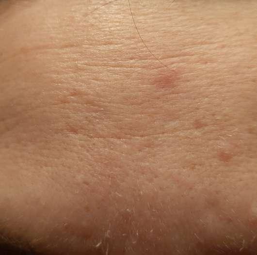 Haut vor der Anwendung der The Beauty Mask Company Tuchmaske Hyaluron-Effekt