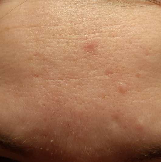 Haut nach der Anwendung der The Beauty Mask Company Tuchmaske Hyaluron-Effekt