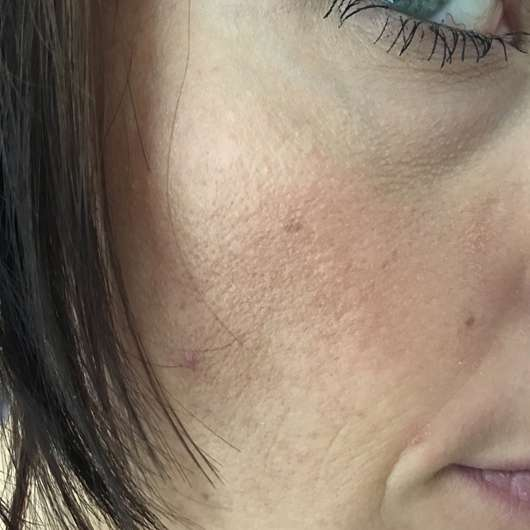 Haut zu Testbeginn - Tiroler Kräuterhof Naturkosmetik Bio Gesichtscreme
