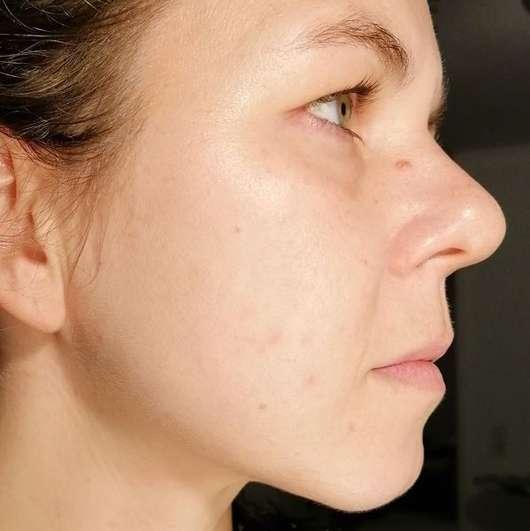 AVON ANEW Radiance Maximising Tonic - Haut nach 4-wöchigem Test