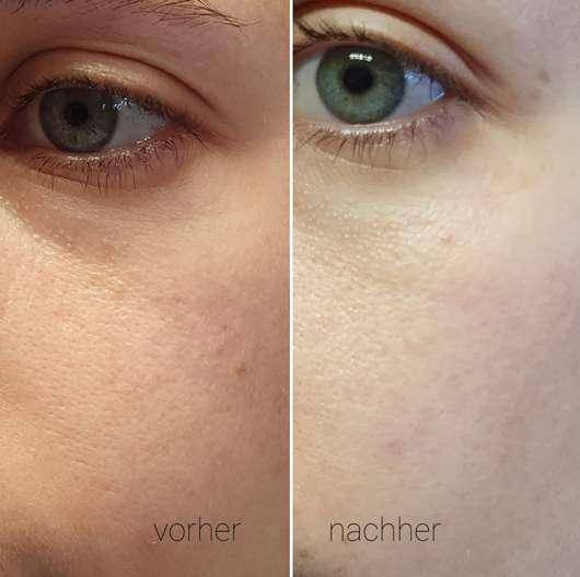 Dr. Scheller Argan & Amaranth 7 Tage Anti-Falten Ampullen-Kur - Haut zu Testbeginn // Haut nach Testende