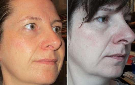 Dr. Scheller Melone & Moringa Schützende 24h Feuchtigkeitscreme - links: Haut zu Testbeginn // rechts: Haut nach 4-wöchigem Test