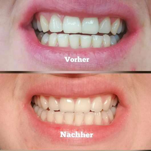 MARA EXPERT Aktivkohle Plus Sensitiv Zahncreme - Zähne zu Testbeginn // nach Testende