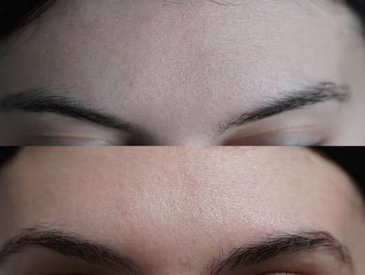 Oben: Haut zu Testbeginn // Unten: Haut nach 4 Wochen