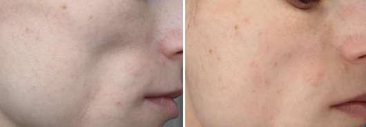 ebelin Gesichtsreinigungs- und Massagebürste, Farbe: Mintgrün