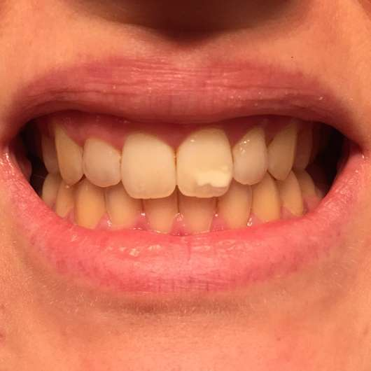 Mara Expert Aktivkohle Intensiv Zahnpflege-Jelly - Zähne zu Testbeginn (ohne Blitz)