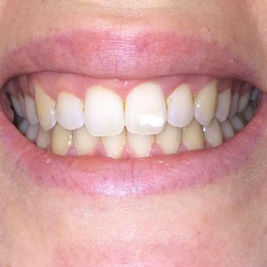 Mara Expert Aktivkohle Intensiv Zahnpflege-Jelly - Zähne zu Testbeginn (mit Blitz)