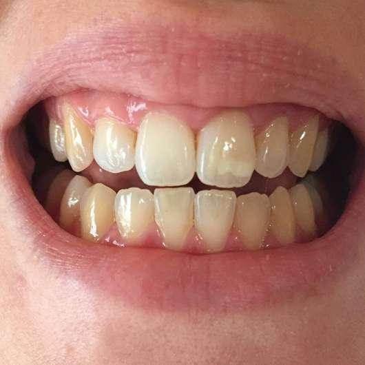 Mara Expert Aktivkohle Intensiv Zahnpflege-Jelly - Zähne nach 4-wöchigem Test (ohne Blitz)