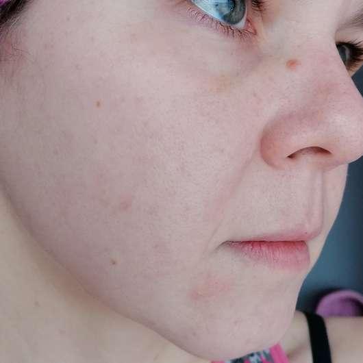 Weleda Feigenkaktus Erfrischendes Feuchtigkeitsspray - Haut vor Testbeginn