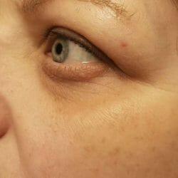 Alterra Naturkosmetik Sleeping Augencreme - Haut nach 4-wöchigem Test