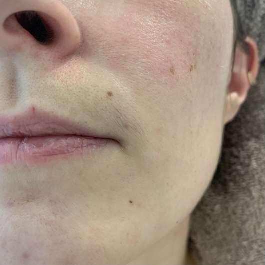vor der Anwendung der Balea Gesichts-Kaltwachsstreifen