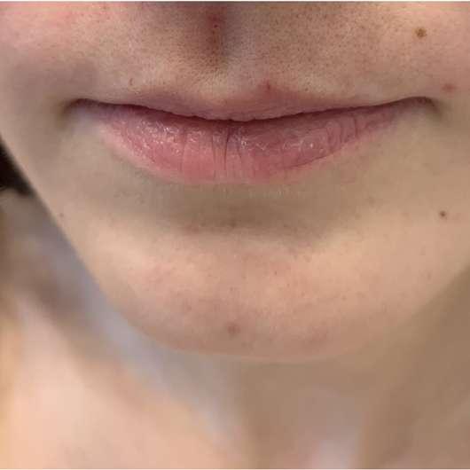 nach der Anwendung der Balea Gesichts-Kaltwachsstreifen