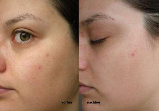 Dr. Scheller Anti-Pickeltupfer gegen Hautunreinheiten - Haut zu Testbeginn // Haut nach 4-wöchigem Test