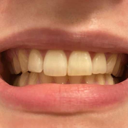 MARA EXPERT Aktivkohle Intensiv Zahnpflege-Jelly - Zähne zu Testbeginn