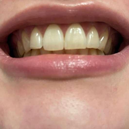 MARA EXPERT Aktivkohle Intensiv Zahnpflege-Jelly - Zähne nach 4-wöchiger Testphase