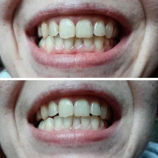 MARA EXPERT Aktivkohle Intensiv Zahnpflege-Jelly - Oben: zu Testbeginn // unten: nach 4 Wochen