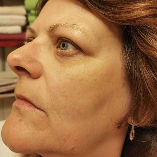 Tiroler Kräuterhof Naturkosmetik Bio Gesichtscreme - Haut nach 2-monatigem Test