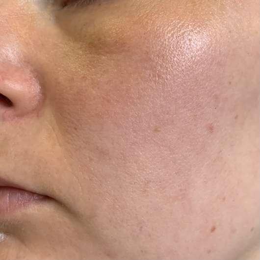 Haut zu Testbeginn - Avène Hydrance Feuchtigkeitsspray
