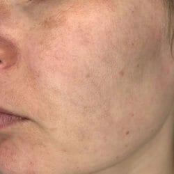 Haut nach dem 4-wöchigen Test - Avène Hydrance Feuchtigkeitsspray