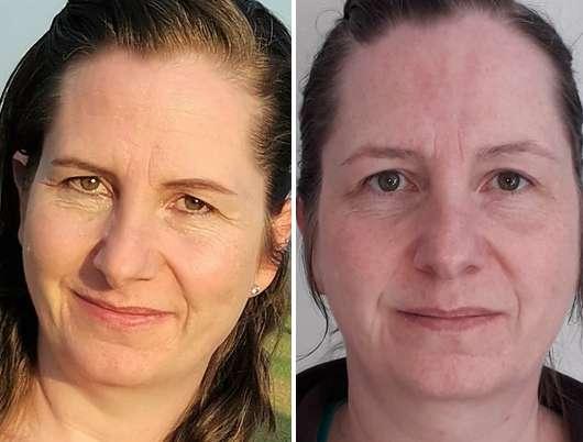 COSPHERA Hyaluron Performance Serum - links: Haut zu Testbeginn // rechts: Haut nach 4-wöchigem Test