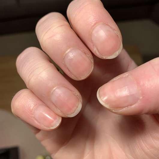 """Fingernägel vor der Anwendung des essence Repair Nail Oil """"Nails & Cuticles Nourisher"""""""